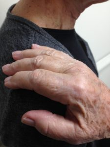 Hands Shoulder